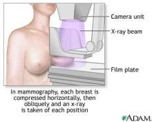 แนวทางปฏิบัติใหม่ เกี่ยวกับการตรวจโรคมะเร็งทรวงอก หรือ mammogram