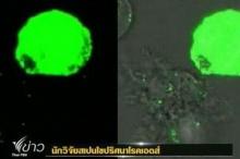 นักวิจัยสเปน ค้นพบโมเลกุลโรคเอดส์
