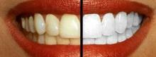 ผลข้างเคียงจากการ..ฟอกสีฟัน
