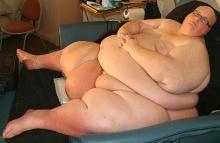อดีตหนุ่มอ้วนที่สุดในโลก ลดนน.เกือบ 300กก. จนหนังเหี่ยวย้อย
