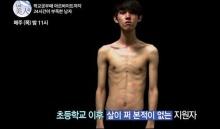 50 วันศัลยกรรมเปลี่ยนชีวิตหนุ่มเกาหลี ยางจองฮยอน