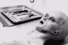อึ้ง!! ภาพลับ เอเลี่ยนถูกชันสูตรศพชี้เกจิฟิล์มยืนยันเป็นภาพจริง(ชมภาพ)