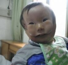 อึ้ง! เด็กหน้ากาก มี (หน้าสองชั้น) คล้ายใส่หน้ากากอยู่!!!