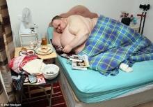 โอ้แม่เจ้า! หนุ่ม 400 โล กินจุวันละหมื่นแคลอรี่ อ้วนจัดลุกไม่ขึ้น หมอหวั่นถึงตาย