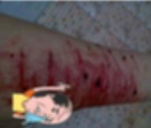 อกหักกรีดแขนเหวอะ!! สาวโพสต์ภาพข้อมือเลือดทะลัก เธอตอกกลับคนที่คิดจะด่า อย่างเจ็บแสบ!!!!