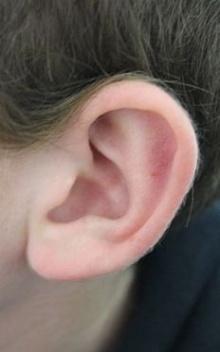 การดูแลสุขภาพหู