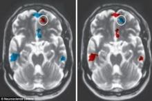 นักวิทย์เผยผลสแกนสมองพิสูจน์รักแท้ได้