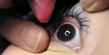 เมคเลิฟผิดๆ เสี่ยงตาบอด!