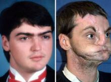 Face/Off!! ไม่เชื่อก็ต้องเชื่อ การผ่าตัดเปลี่ยนหน้าครั้งแรก เกิดขึ้นแล้วบนโลกใบนี้!!