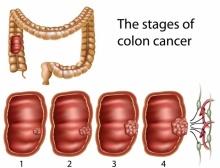 5สัญญาณมะเร็งลำไส้ใหญ่และทวารหนัก
