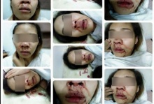 ช้ำใจ!!ถูกผัวตีเลือดอาบลูกน้อยคอยซับน้ำตาและเลือด ด้วยเรื่องแค่นี้นะ!!