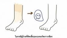 """""""ทำไมถึงขั้นต้องตัดขา"""" เข้าใจง่ายๆด้วยความรู้ ฉบับ 'การ์ตูน'"""