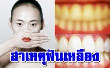 """""""ฟันเหลือง"""" สาเหตุที่แท้จริงคืออะไร+แนวทางแก้ไข"""