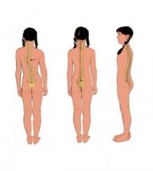 ระวัง....โรค กระดูกสันหลังคด