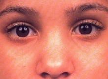 การใช้สายตาอย่างถูกต้อง