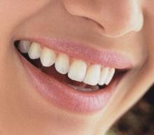 ไซลิทอล ดีต่อสุขภาพฟันอย่างไร