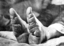 เท้าดอกบัว ( Foot Binding )
