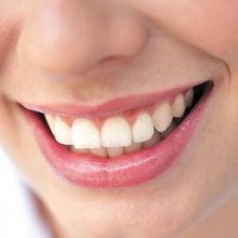 จุลินทรีย์สาหร่ายทะเลป้องกันฟันผุ