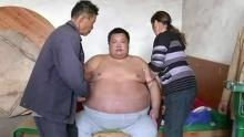 อ้วนผิดปกติน้ำหนักพุ่ง 30 ก.ก.ในเวลา 19 วัน