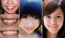 สาวญี่ปุ่นฮิตเติมฟันเขี้ยว-เชื่อยิ้มน่ารักขึ้น