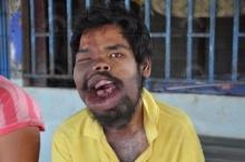 พบหนุ่มป่วยโรคประหลาด ปากผิดรูปธรรมชาติ กินข้าวไม่ได้ เป็นโรคลมชักซ้ำ ขาดเงินหาหมอ