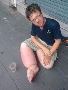 แชร์สนั่น! วอนช่วยเหลือหนุ่มฝรั่งขาบวมนั่งขอทานที่ถนนข้าวสาร