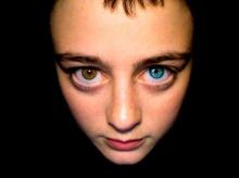 Heterochromia ...สีตาที่แปลกที่สุดในโลก