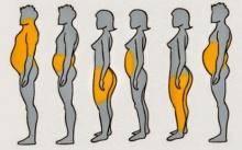 เช็ก 6 ลักษณะของร่างกาย ที่ทำให้รู้ว่าความอ้วนของคุณเกิดจากอะไร