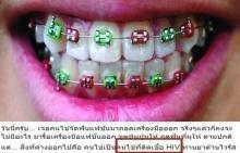 หมอฟันเล่าเรื่องชวนช็อก!! เจอคนไข้จัดฟันเถื่อนป่วยติดเชื้อ HIV !!