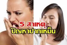 5 สาเหตุ ปัญหาปากเหม็นเกิดจากอะไร?