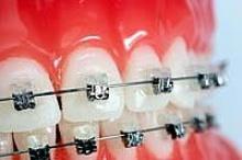 การดูแลช่องปากระหว่าง...จัดฟัน