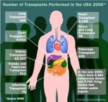 การปลูกถ่ายอวัยวะคืออะไร