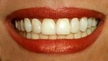 ฟอกฟันขาวระวังช่องปากไหม้