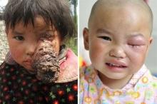 แพทย์จีนช่วยเด็กป่วยเนื้องอกใหญ่ที่ดวงตา