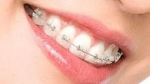 ดูแลฟันอย่างไร ในช่วงจัดฟัน