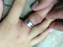 สุดเสียว แหวนคับนิ้วถอดไม่ออกจนต้องแจ้งหน่วยกู้ภัยช่วย