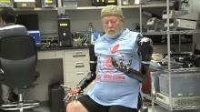 """สุดยอดมนุษย์คนแรก! ที่มีแขนหุ่นยนต์ 2 ข้างที่ควบคุมด้วย """"ความคิด"""" ได้!"""