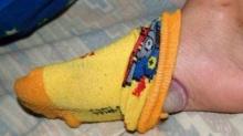 เหลือเชื่อ! เอาหอมใหญ่ใส่ในถุงเท้า ผลที่ได้แม้แต่แพทย์ก็ยังไม่สามารถอธิบายได้
