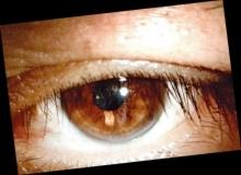 ดร.เจษฎา ชี้ จ้องมือถือที่มืดทำให้เป็น มะเร็งตา เป็นเรื่องหลอกลวง