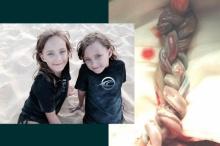 หาชมยาก สายสะดือฝาแฝดพันกันเป็นเปีย แพทย์ทึ่งเด็กรอดชีวิต