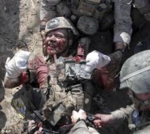 ยังยิ้มได้!!! ทหารโดนระเบิดขาขาด แต่ยังมีรอยยิ้มเป็นกำลังใจให้คนนับล้าน