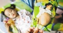 เด็กหญิงวัย 7 ขวบท้องโตเหมือนตั้งครรภ์ เมื่อแพทย์ตรวจแล้วทำให้แม่ถึงกับตกใจ