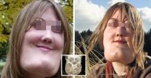 หญิงคนนี้ถูกโรคประหลาดทำพิษจนหน้าเปลี่ยน เอ็กซเรย์ดูถึงกับช็อก!