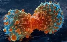 รู้หรือไม่? เซลล์มะเร็งต้องการอะไรจากเรา