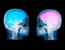 สมองชายกับหญิงขนาดไม่ได้ต่างกัน