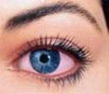 แก้ตาแดง