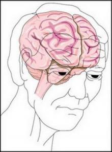 ยิ่งแก่ ยิ่งสมองเสื่อม!