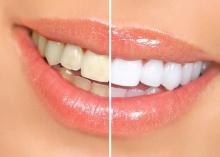 3 วิธีแก้ไขฟันเหลืองอย่างได้ผล