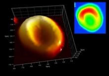 ฮือฮา! ค้นพบเซลล์เม็ดเลือดแดงเก่าแก่ที่สุดในโลก