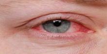 """พบเชื้อราตัวใหม่ต้นเหตุ """"ตาแดง"""" ร้ายแรงถึงขั้นทำให้ตาบอด"""